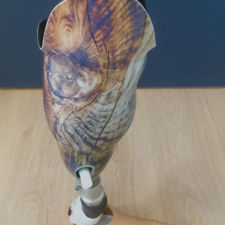 Prothèse tibiale avec pied classe III