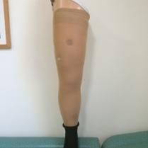 Prothèse fémorale avec mousse esthétique